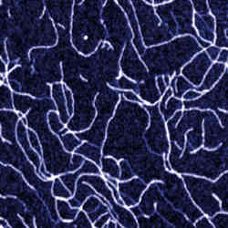Xanthan molecules on mica